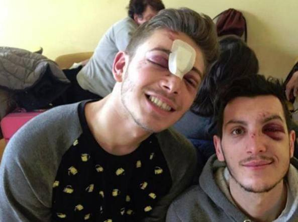 La foto dei due ragazzi aggrediti pubblicata sulla pagina Facebook di Wequal, che si batte contro l'omofobia